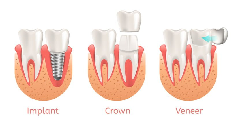 veneer-implant-crown
