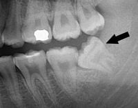 Diagonal erupting wisdom tooth