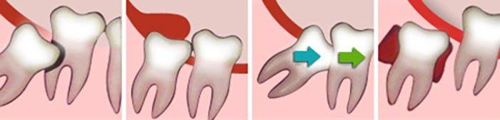 Wisdom Teeth Complications