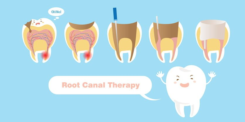 Eating After Root Canal Therapy - Marsfield Dental Care