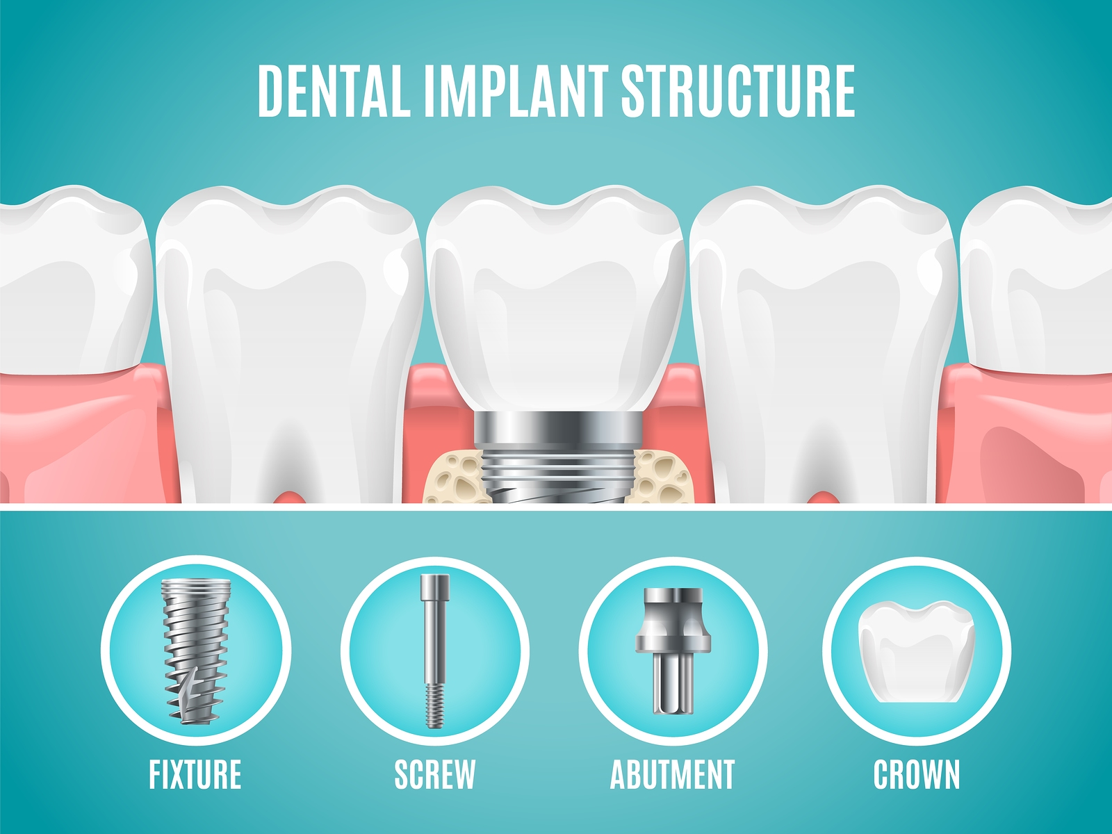 Dental implant structure.
