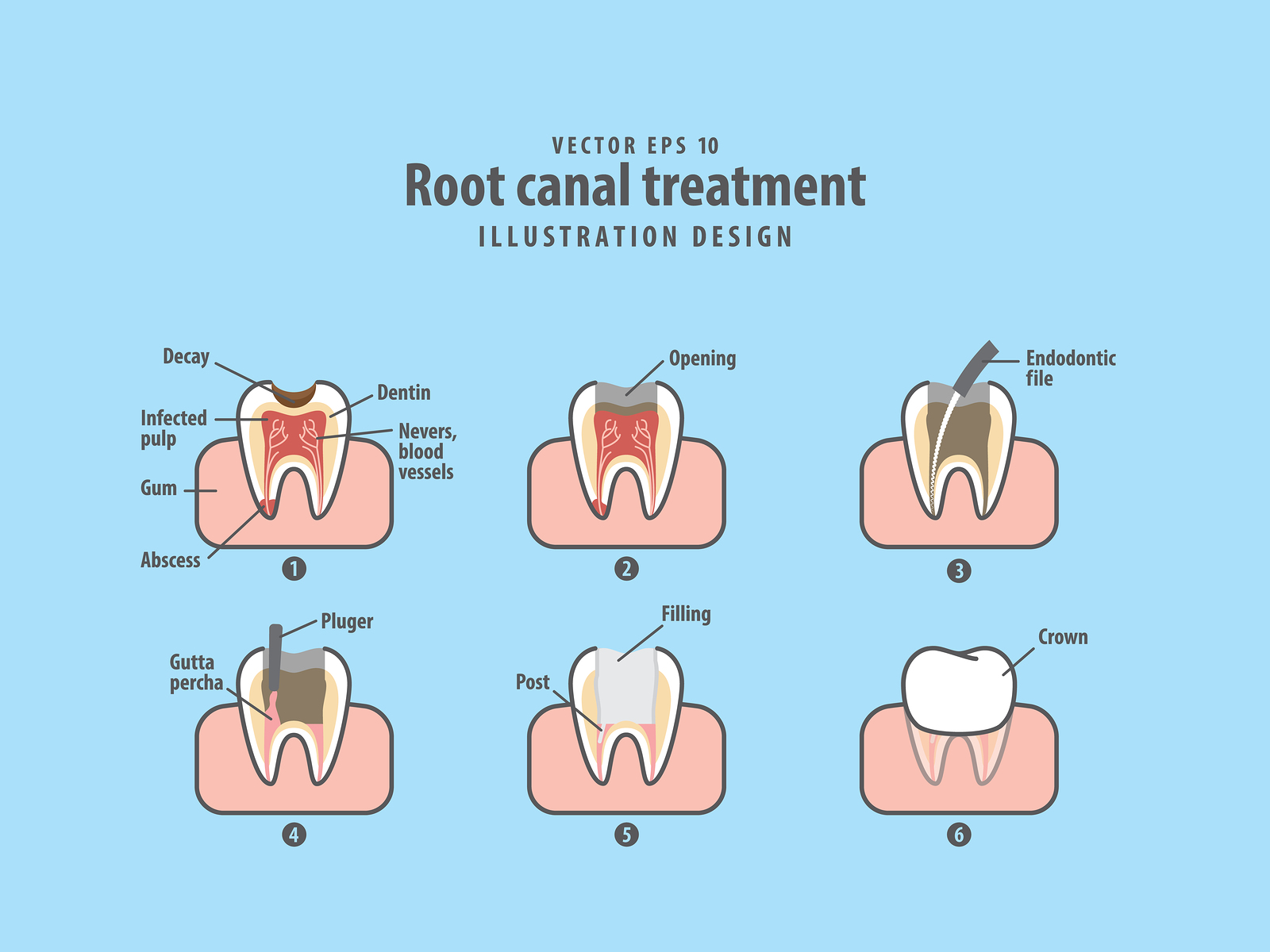Root canal treatment illustration vector on blue background.