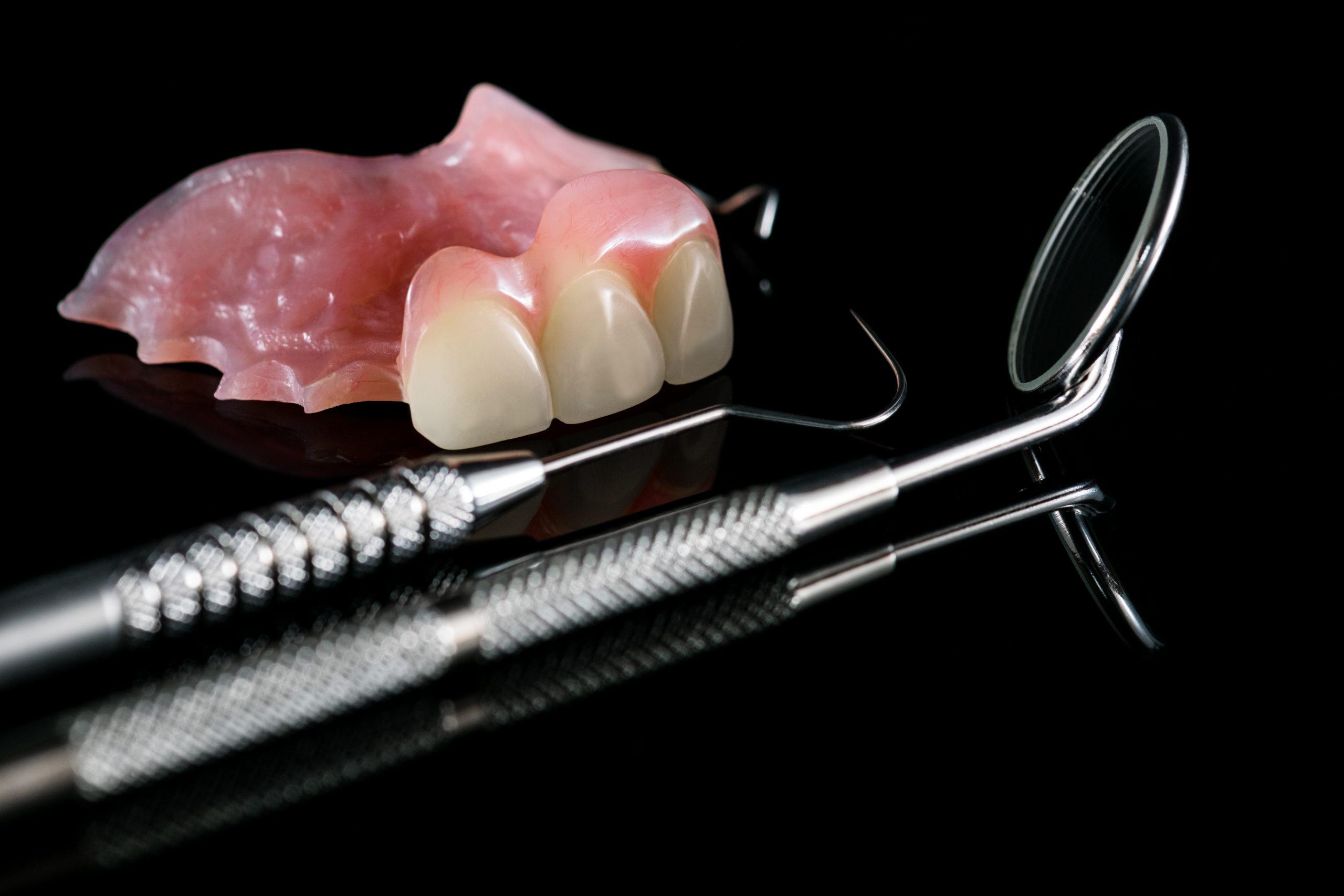 Dental prosthetic isolatic - partial denture upper side