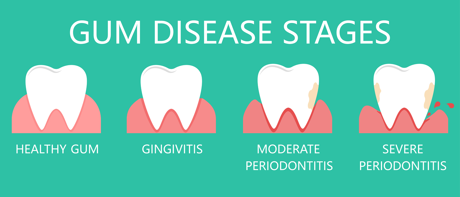 The stages of gum disease, the stage of development of dental periodontitis.