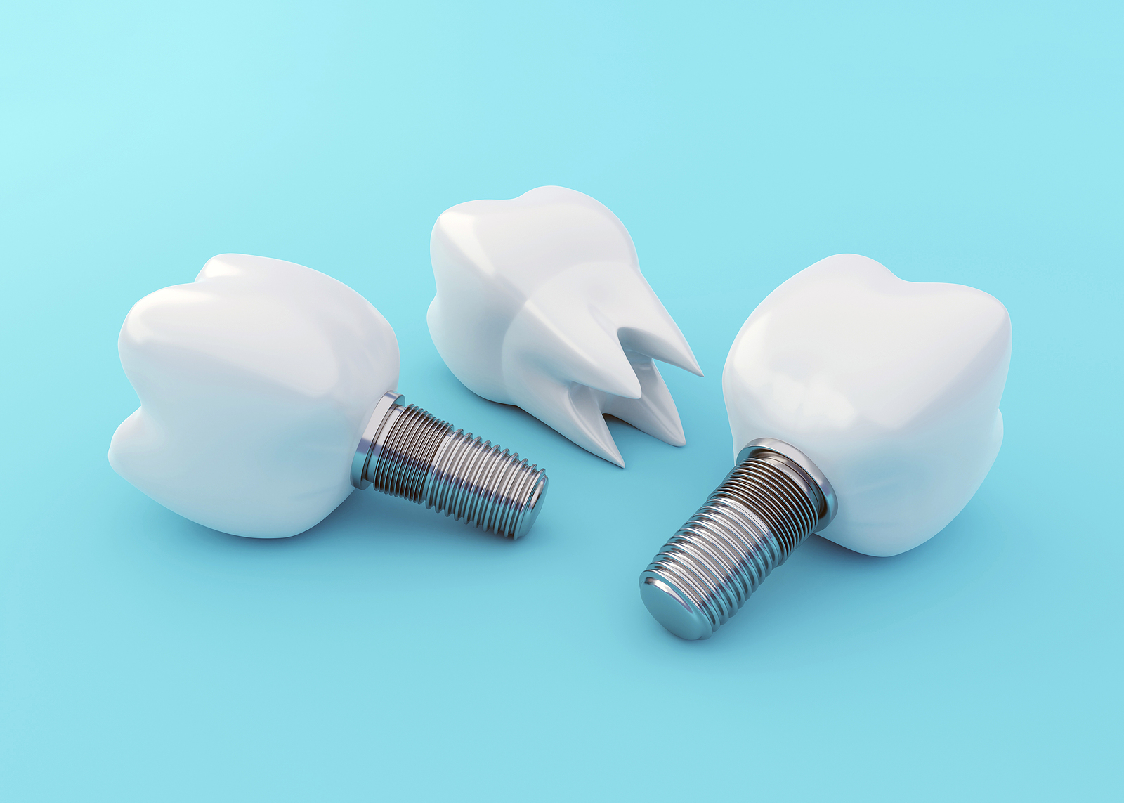 Artificial Tooth Implants and Tooth Crown on blue background